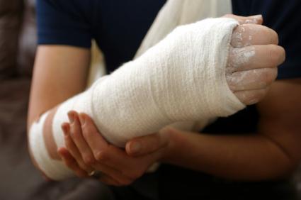 Egy nő törött keze be van gipszelve.